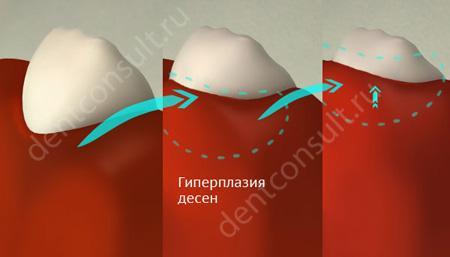 Гиперплазия десен
