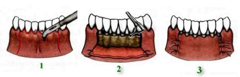 Зуб отошел от корня