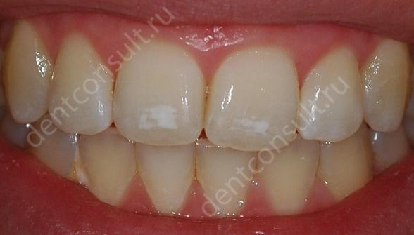 Фото: Белые пятна на зубах из-за избытка фтора.