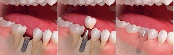 Фото: классический метод имплантации