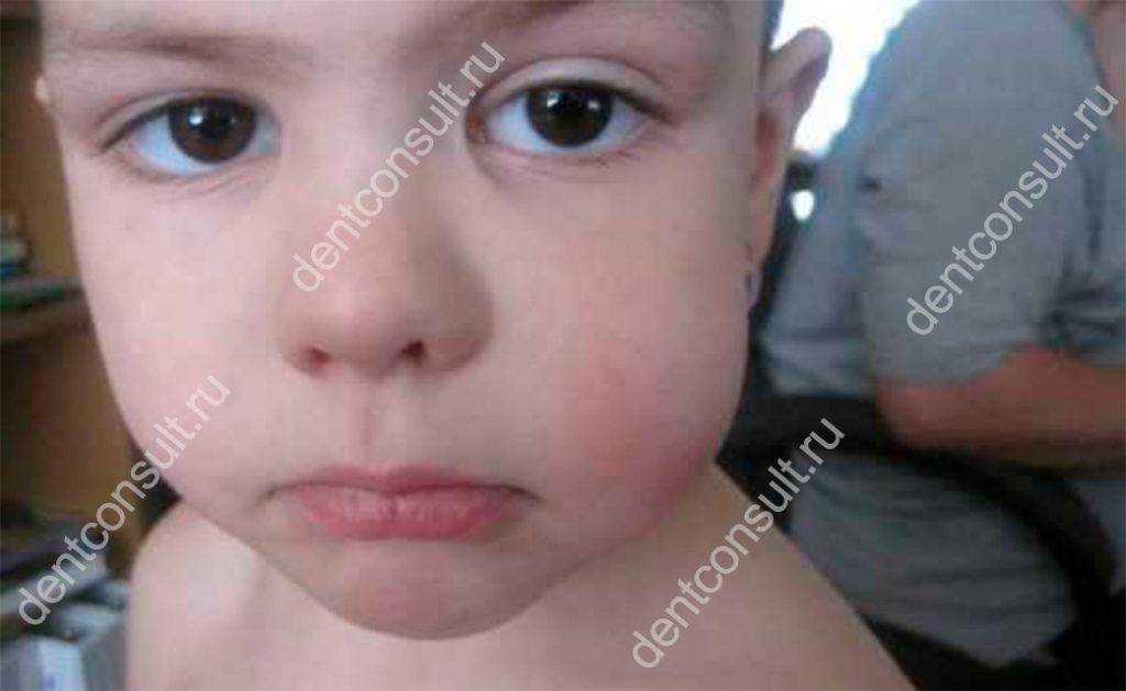 У ребенка симптомы могут ярко выраженными.