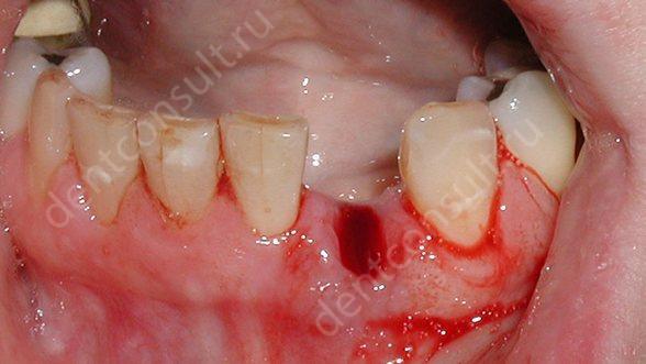 На фото показан сгусток крови после удаления зуба