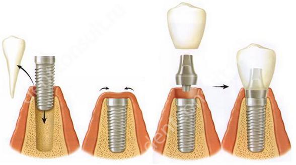 Фото: способ одномоментной имплантации зуба