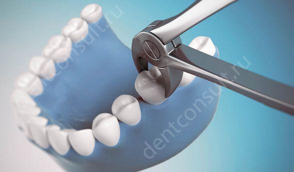 Фото: Удаление зубов
