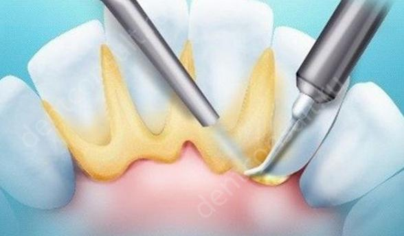 Чистка зубов методом Air flow в чем преимущества и недостатки?