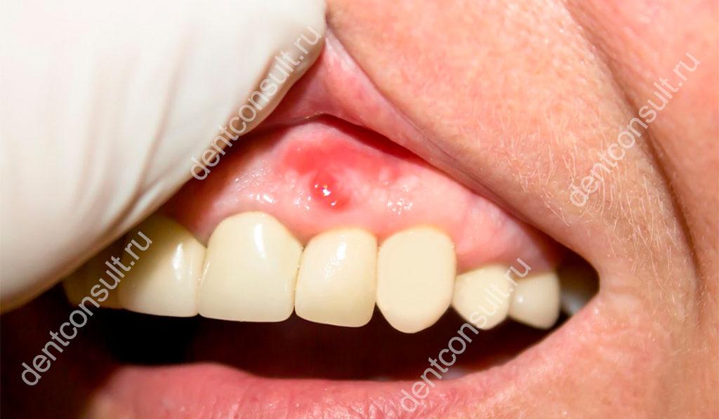 воспаления надкостницы зуба