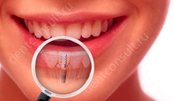 Когда и как восстанавливать зуб после удаления?