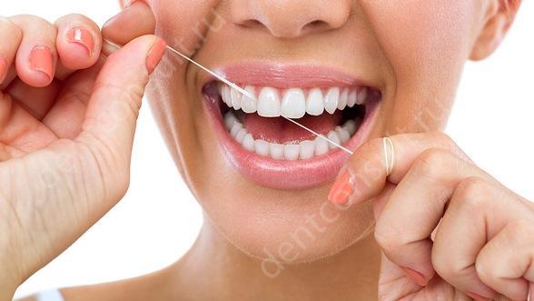 Фото: Зубная нить (флосс) — специальная нитка для очистки межзубных промежутков.