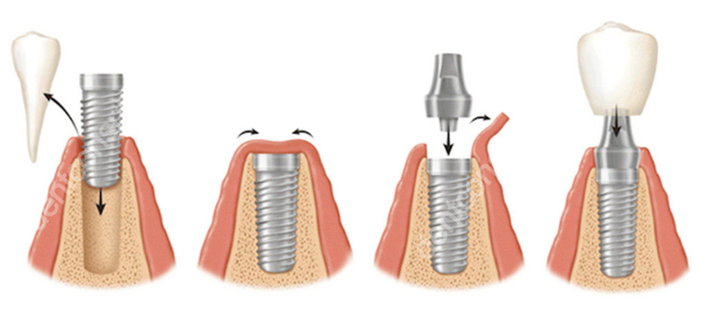 имплантация