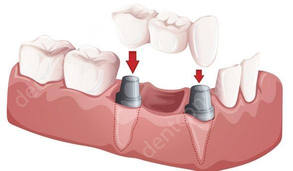 Фото: Восстановление зубов мостовидными протезами на культевых вкладках