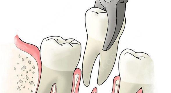 фото: простое удаление зуба
