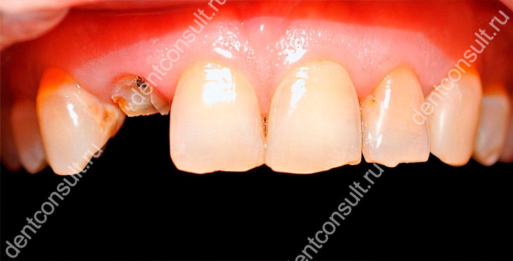 разрушен зуб
