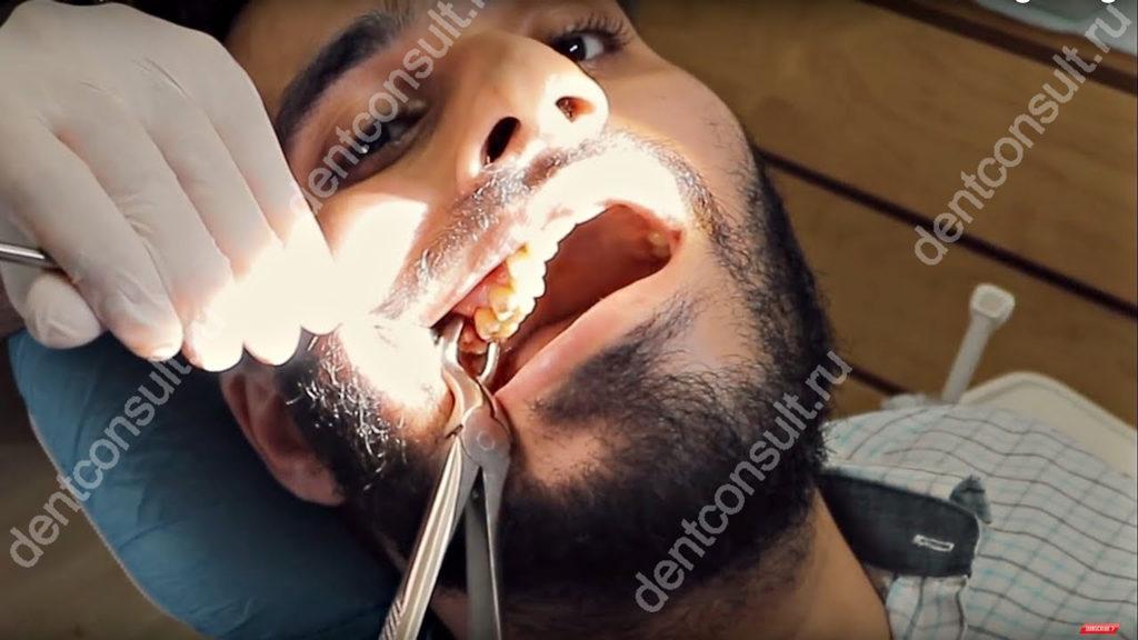 удаление зуба мудрости