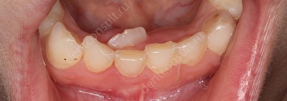 На фото показан зуб который нужно удалять