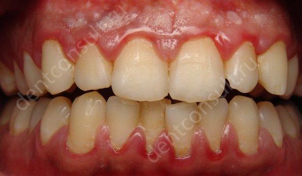 Фото: заболевание десен, как противопоказание к реставрации зубов светокомпозитом