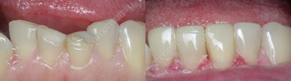 Пациент жаловался на неэстетичный вид нижних центральных зубов. Была проведена процедура реконструкции и реставрации.