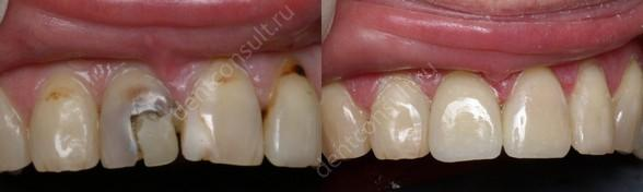 Коррекция размера, цвета, формы зубов при помощи светокомпозитного материала
