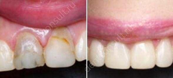 Фото до и после реставрации светокомпозитом