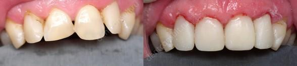 Коррекция размера, цвета, формы зуба без лечения корневого канала.