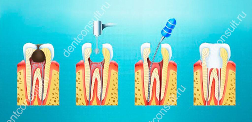 Хирургический метод лечения пульпы