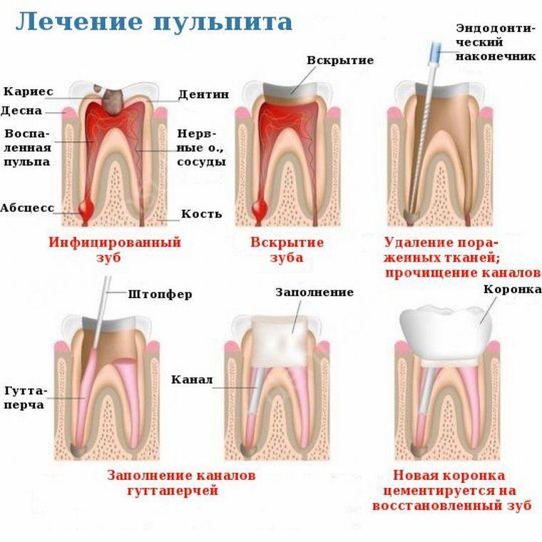белье для чем обезболить зубную боль после пульпита у ребенка планируете