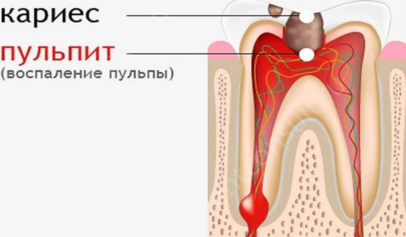 Должен ли болеть зуб после лечения пульпита?