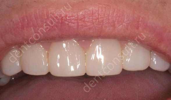 Реставрация зубов композитным материалом, показания, фото