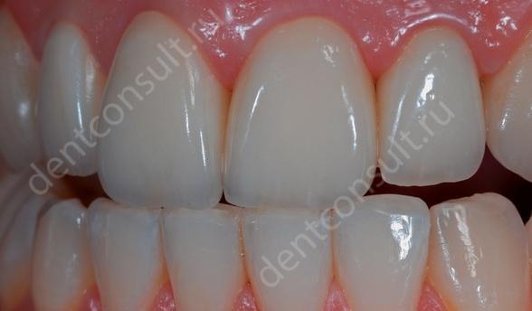Как восстановить сколы на передних зубах. Методы восстановления.