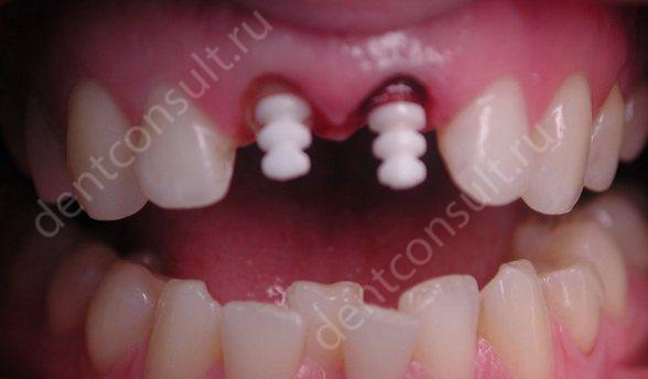 Фото: штифт для наращивания зубов