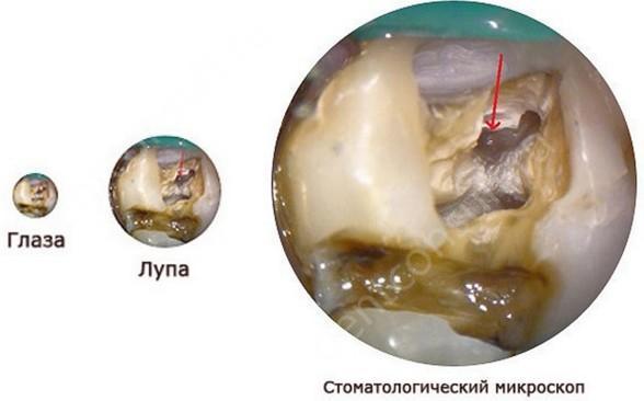 Фото: Наглядное изображение поврежденного зуба видимого невооруженным взглядом стоматолога и с использованием операционного микроскопа.