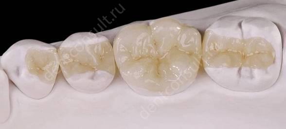 Протезирование зубов: фото до и после