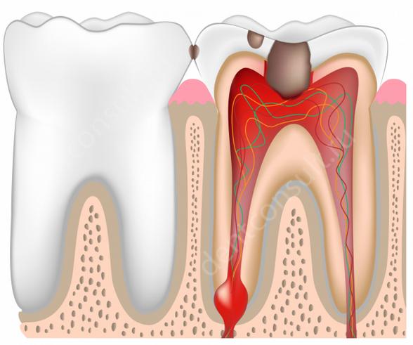 воспаление зубной пульпы