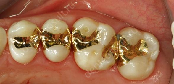 Фото: восстановительные вкладки из золота
