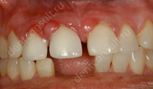 Что такое гранулирующий периодонтит или гранулема зуба – симптомы и лечение