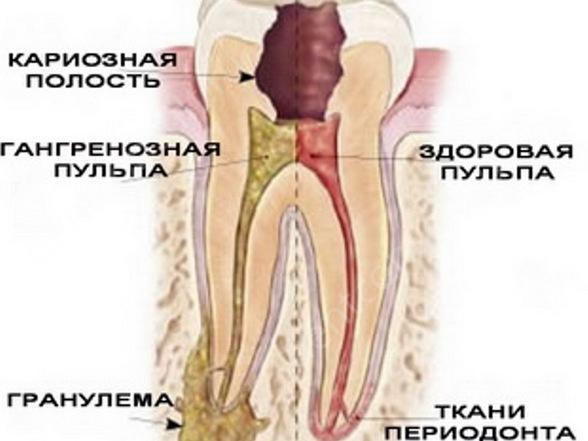 Гранулирующий периодонтит – средняя форма хронического заболевания, при которой в области корня зуба возникает гнойное отложение.