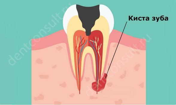 На фото показано воспаление корня зуба