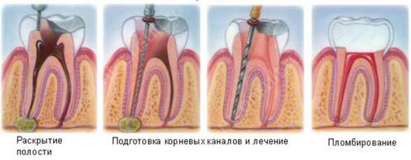 На фото показан процесс лечения воспаления корня зуба