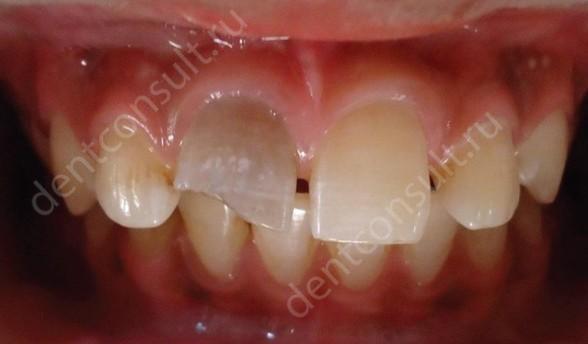 Фото: травма зуба, как причина воспаления