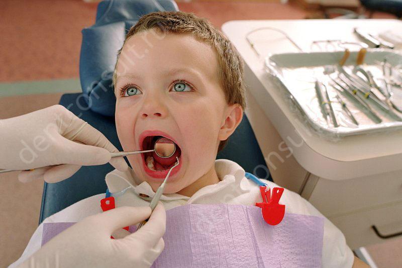 Бывает ли периодонтит у детей?