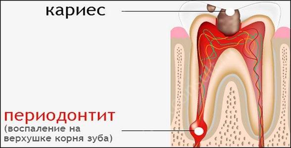 Фото: воспаление инфекционного типа