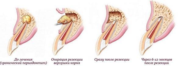 Фото: удаление гнойного образования с внешней стороны зуба.