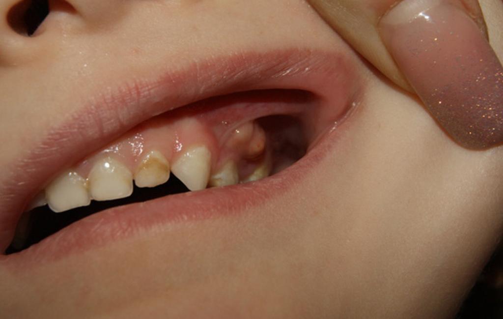Что делают при флюсе в стоматологии