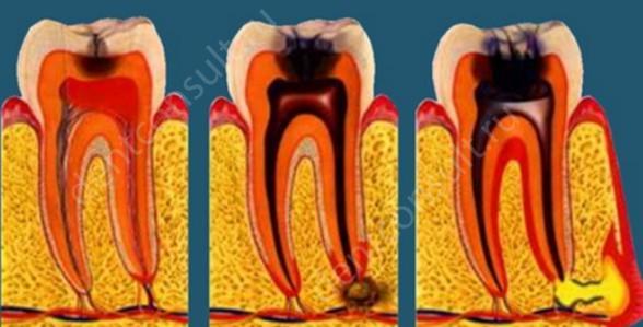 На фото показан инфекционный периодонтит