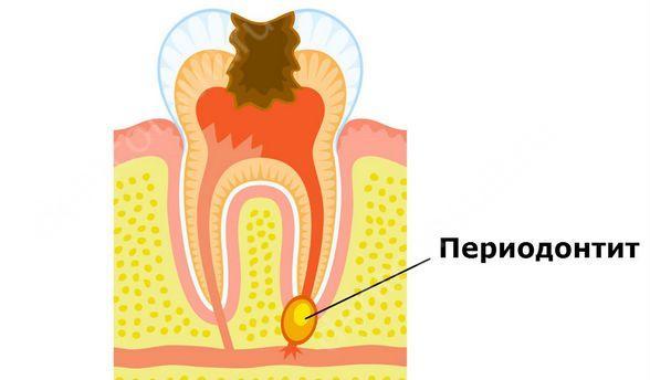 Причины и виды хронического периодонтита