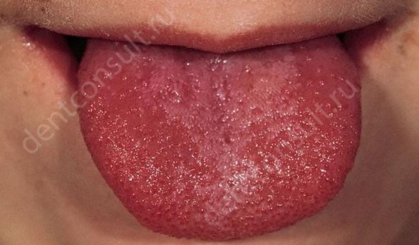 Фото: скарлатина, как причина появления папиллом в горле