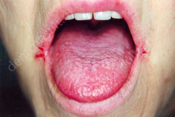 На фото показан ангулярный стоматит