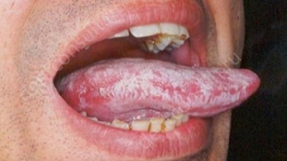 На фото показан грибковый стоматит