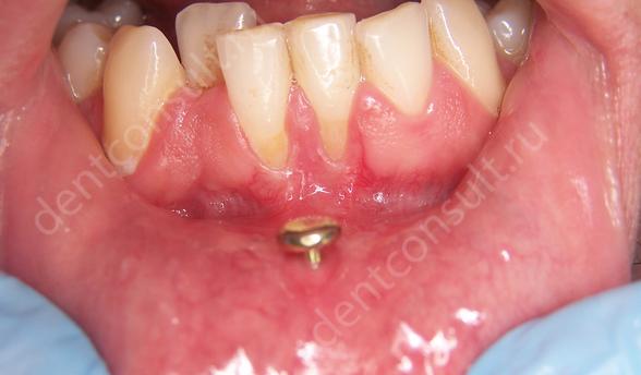 Фото: влияние пирсинга на зубы