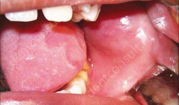 Слизистая оболочка полости рта обладает некоторыми особенностями, которые отличают ее от прочих слизистых поверхностей человеческого организма