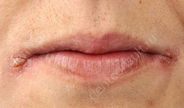 запах изо рта болезни печени